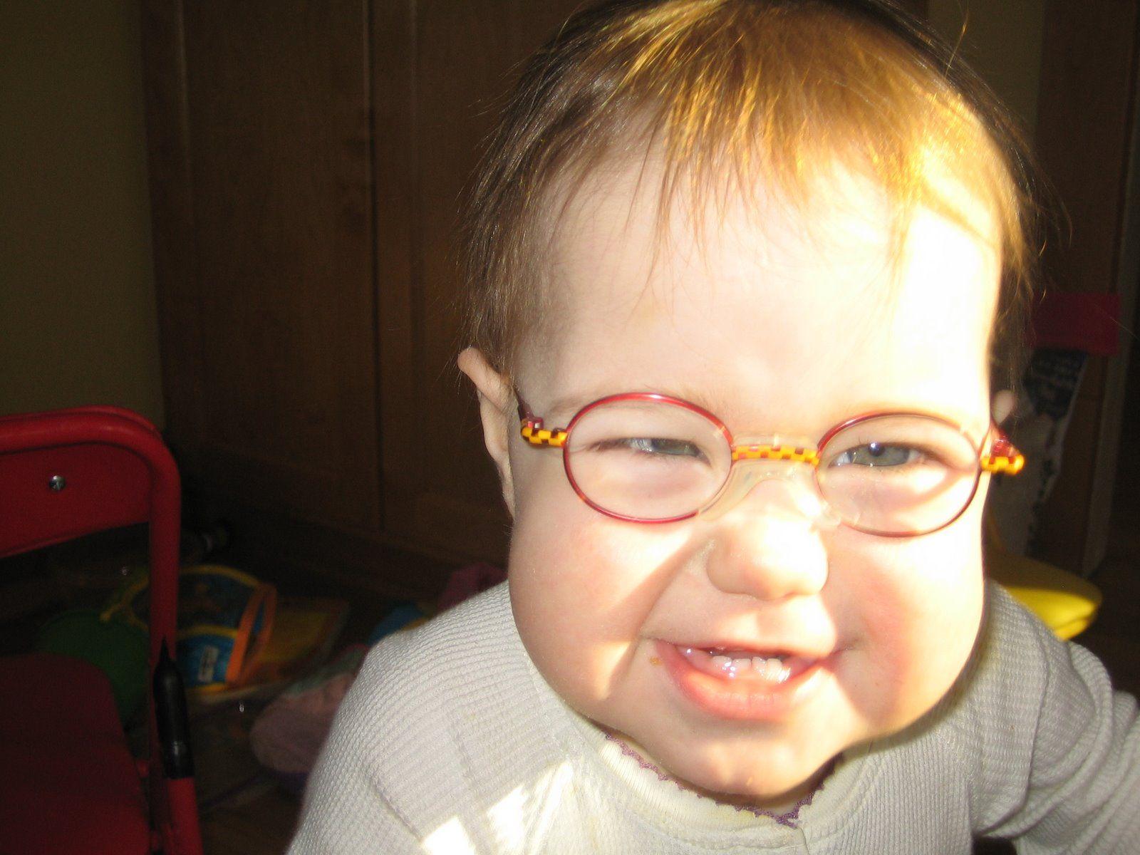 תרגילי עיניים לשיפור הראייה